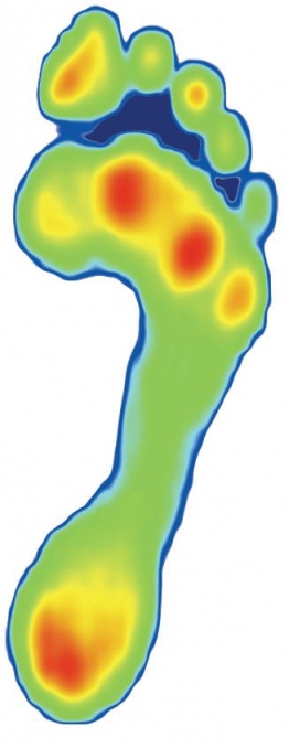 Dynamic 3D Foot Scanner at Willaston Physio & Sports Rehab